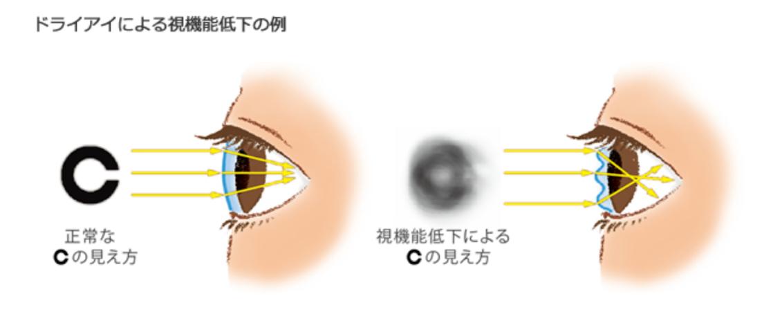 ドライアイによる視機能低下の例